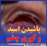 پاشیدن اسید و کوری چشم